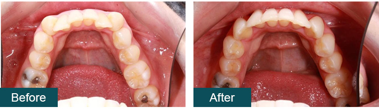 Invisalign Before and After 3 - Smile Works Dental
