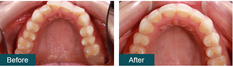 Invisalign Before and After 5 - Smile Works Dental