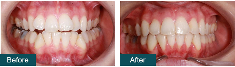 Invisalign Before and After - Smile Works Dental