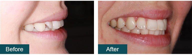 Invisalign Before and After 2 - Smile Works Dental
