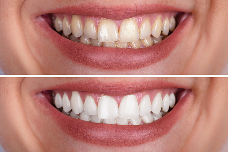 Composite bonding before and after - Smile Works Dental
