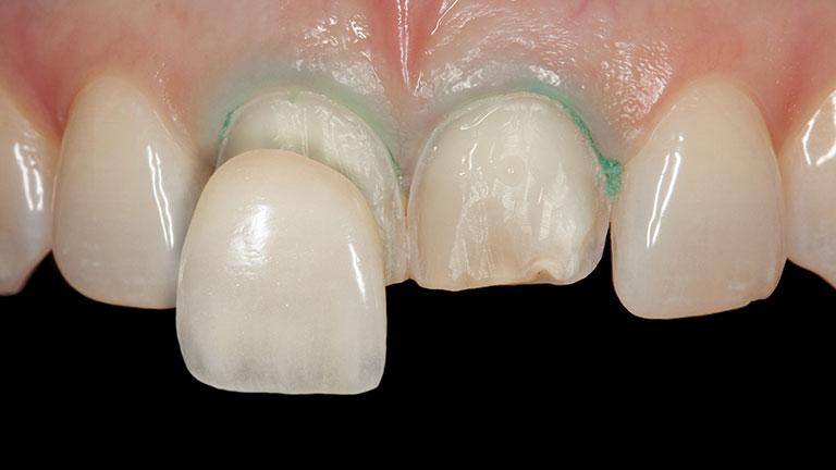 Dental veneers fitting process- Smile Works Dental