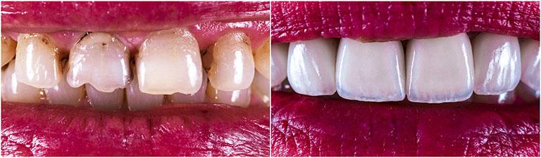 Change shape or size of your teeth by veneers - Smile Works Dental