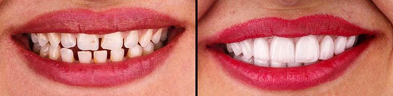 Improve teeth alignment by veneers - Smile Works Dental