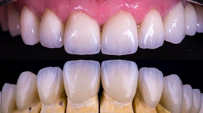 Dental veneers - Smile Works Dental
