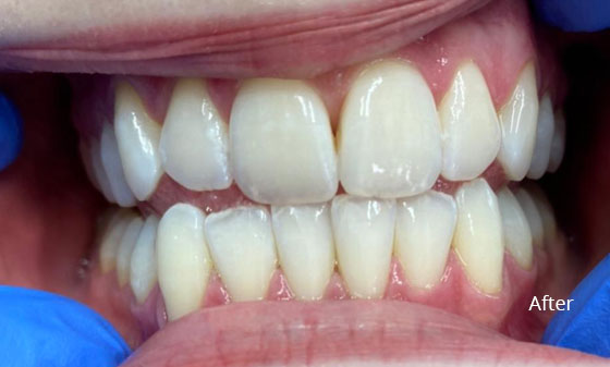 after teeth whitening 3