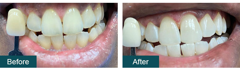 porcelain veneers before after1