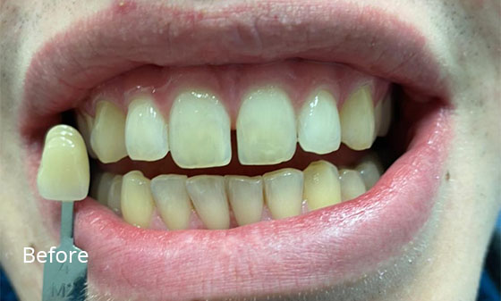 porcelain veneers before3