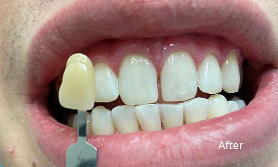 porcelain veneers after3