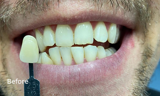 porcelain veneers before1