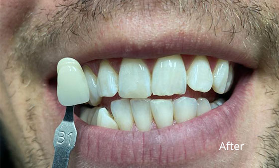 porcelain veneers after1